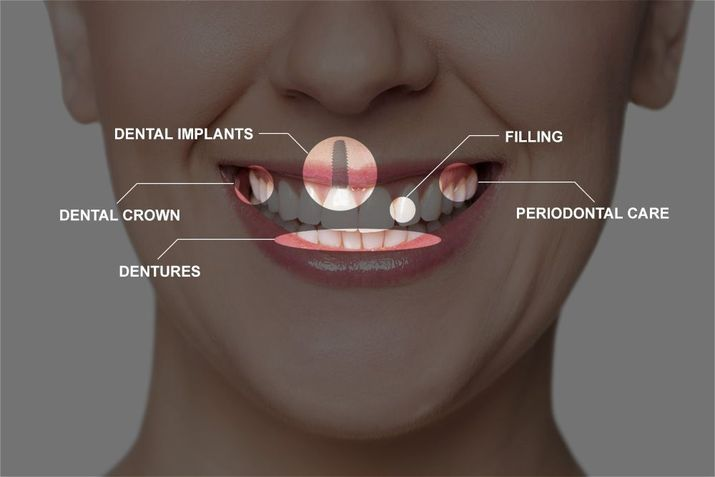 Illustration of the various treatments that can be included in full-mouth reconstruction.