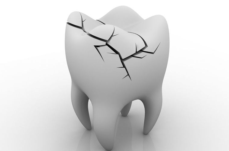 Illustration of fractured tooth