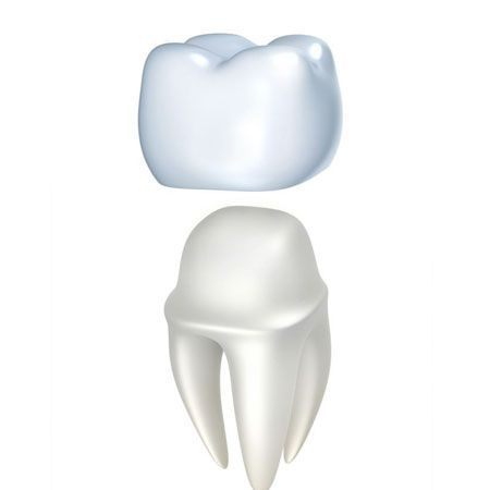 illustration of dental crowns