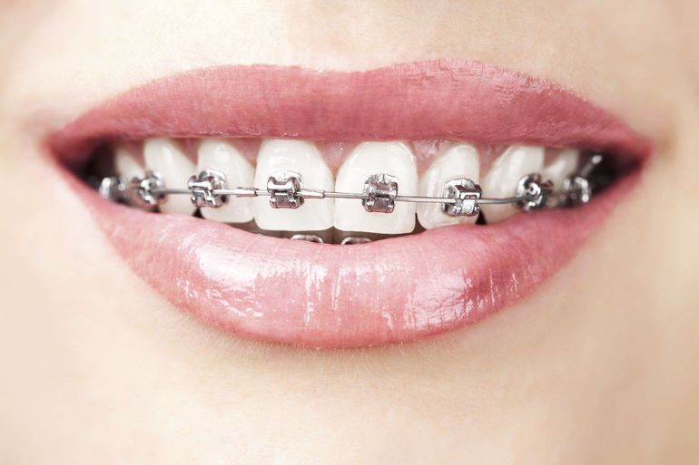 Braces cost philadelphia pa bensalem pa dr kellyn hodges braces cost solutioingenieria Image collections