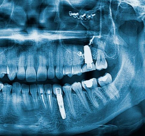 x-ray of a dental implants patient