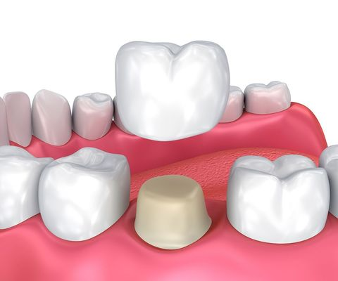 An illustration of a crown being placed on a tooth