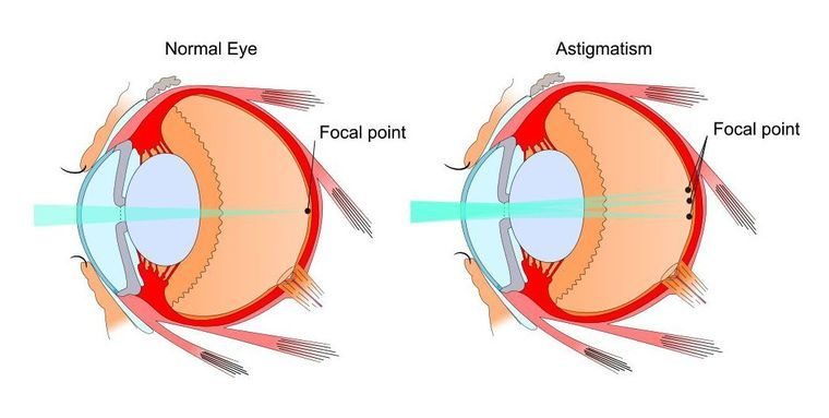 Demonstration of how light is focused in a normal eye and scattered in an eye with astigmatism.
