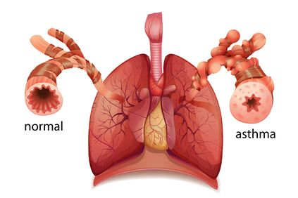 Digital illustration comparing a normal airway to an airway with asthma