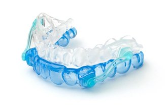 Photo of an oral appliance for TMJ disorders