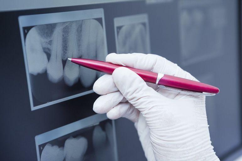 Dentist marking up a dental x-ray.