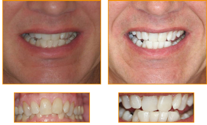 Teeth Whitening Richardson Tx Near Plano Murphy Tx