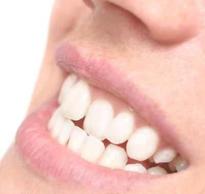 image of woman smiling before Invisalign®