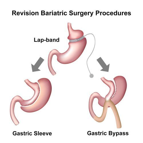 Illustrated comparison of LAP-Band, gastric sleeve, and gastric bypass surgeries