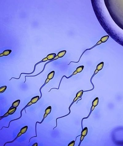 Infertility Clinic: Graphic of sperm.