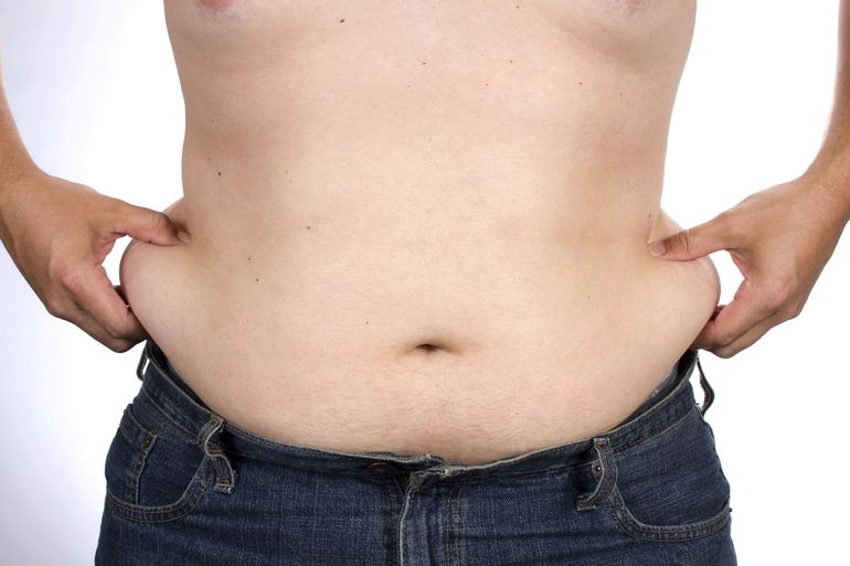 Image of male liposuction candidate
