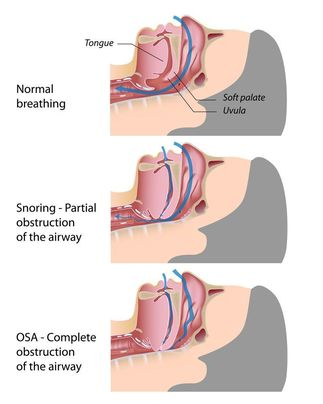 Illustration of anatomy of snoring and OSA