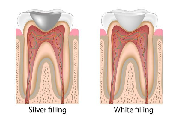 illustration of a tooth with an amalgam filling and a tooth-colored filling