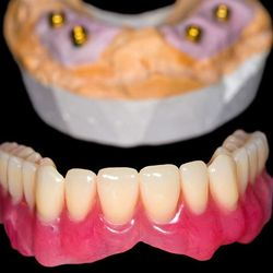 A full-arch implant-supported denture