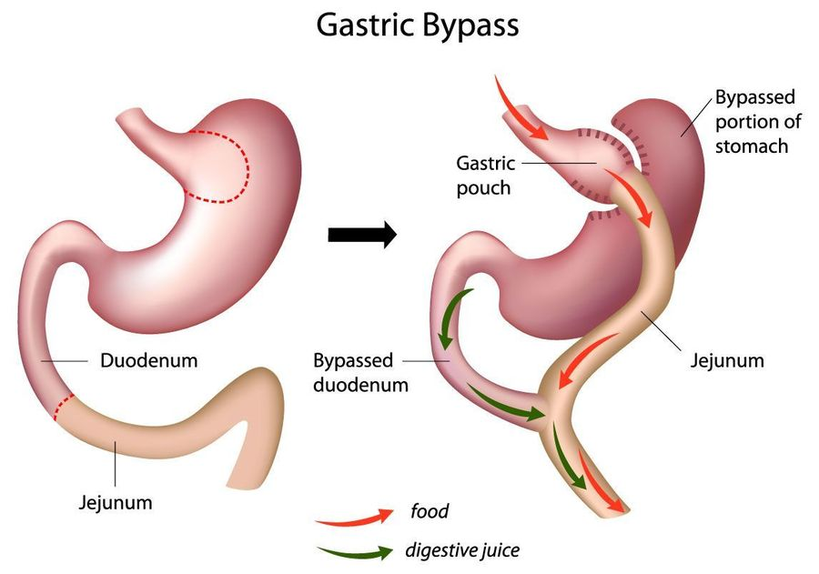 Stomach before and after gastric bypass surgery