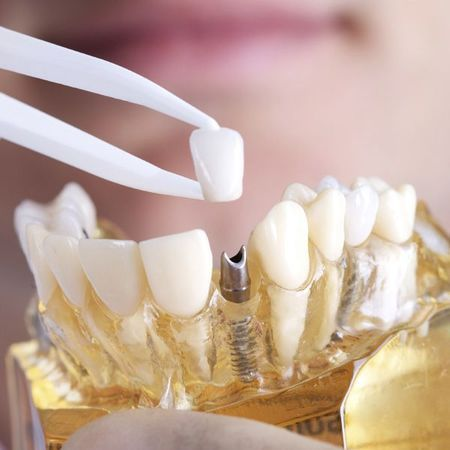 Crown being placed on dental implant model