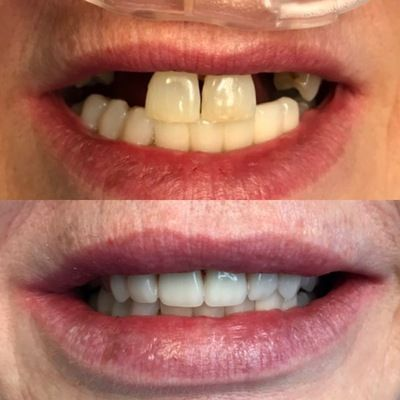 Teeth in a day smile makeover