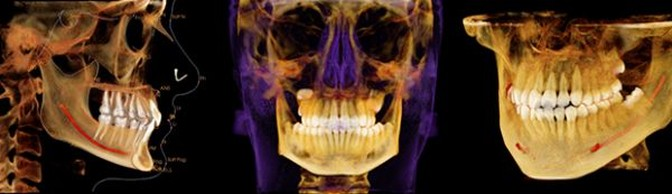 Photos of digital dental scans
