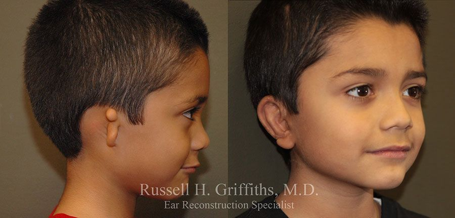 Before and After: One-stage microtia ear reconstruction surgery with rib graft.