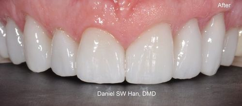 Image of teeth after veneers