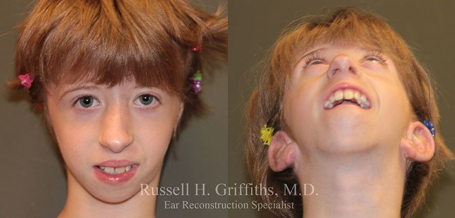 Before and After:  One Stage Microtia Ear Reconstruction Surgery with Canalplasty for bilateral microtia atresia set 4 of 4