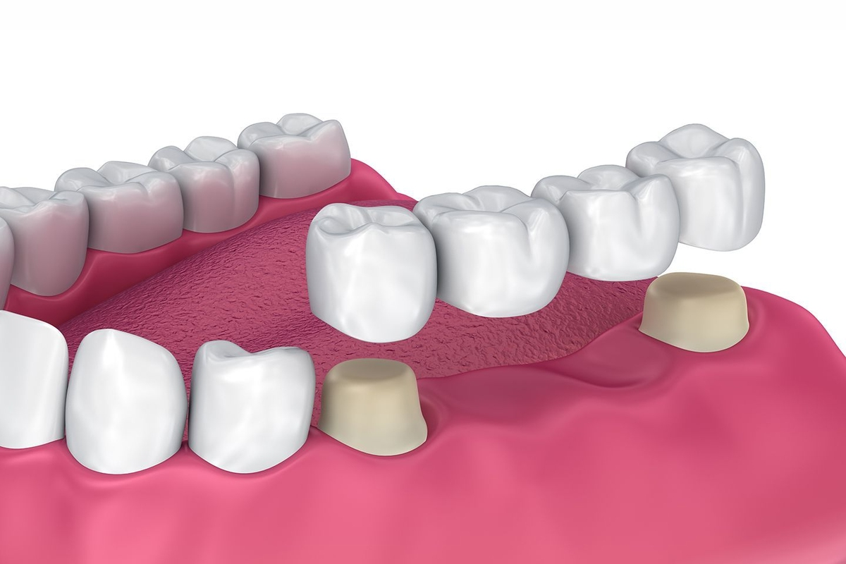 illustration of dental bridge