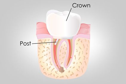 Illustration showing the components of a traditional dental crown