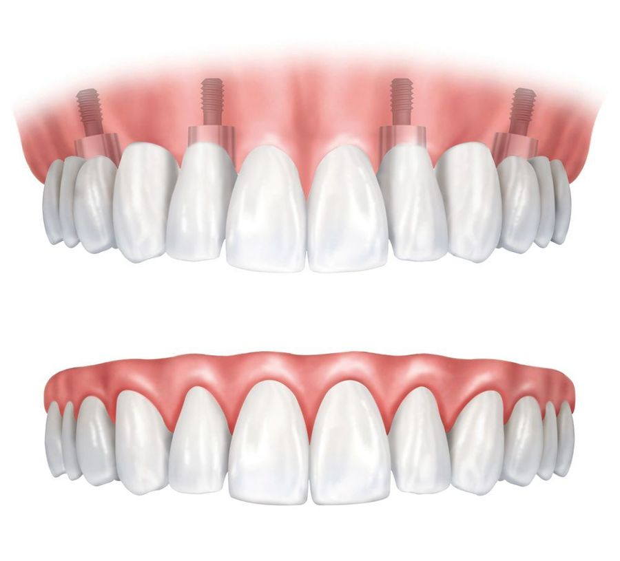 Illustration of an implant supported denture compared to a traditional denture