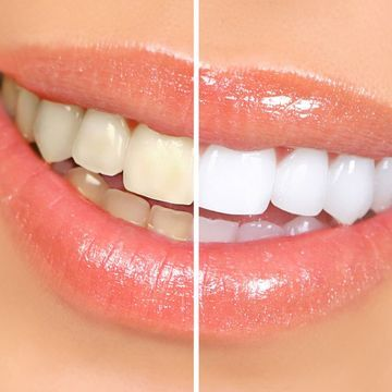 Close-up of teeth demonstrating the difference before and after a cosmetic dentistry teeth whitening procedure