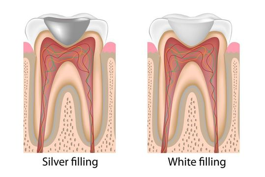 Side-by-side illustration of silver and white fillings
