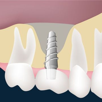 Illustration of implant in jaw