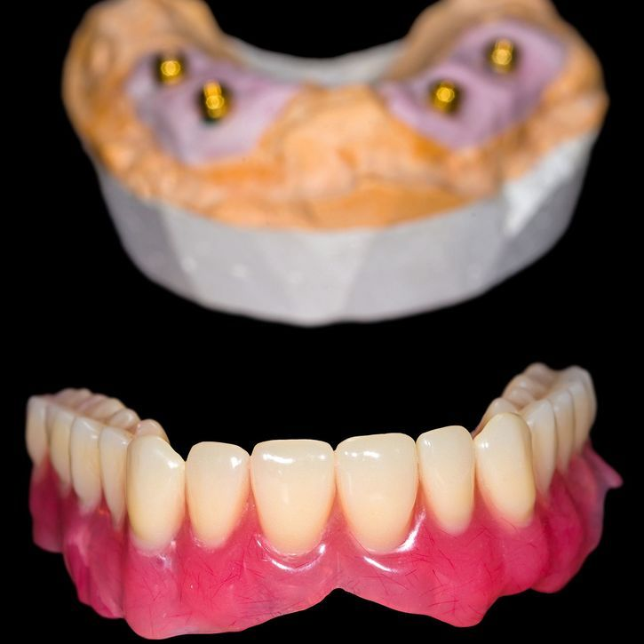 Implant-supported denture and model of jaw