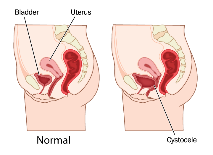 illustration of cystocele