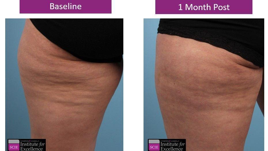 Profound Cellulite Treatment