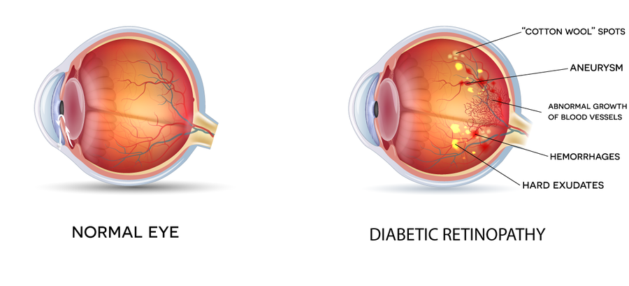 Illustration of healthy eye and eye with diabetic retinopathy
