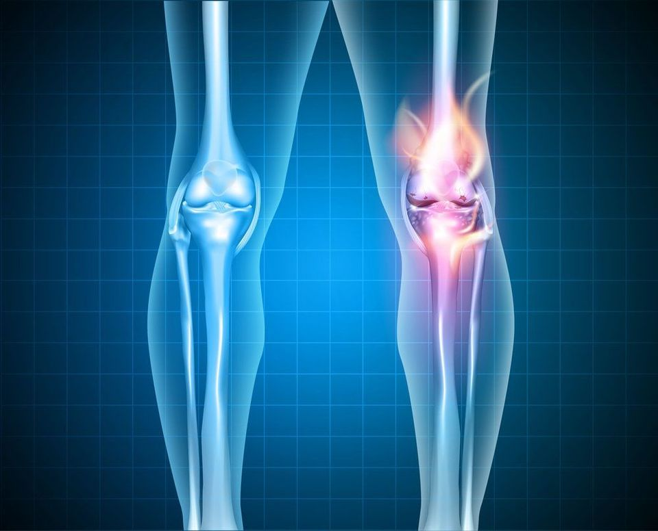 Graphic 3-D highlighting the knee