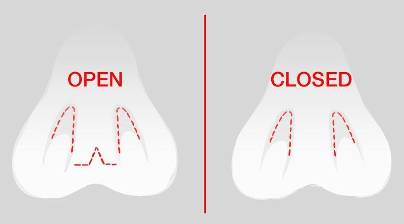 Open vs. Closed Rhinoplasty