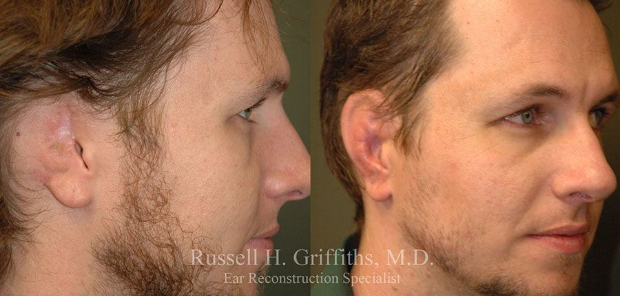 Before and After:  Ear Reconstruction Surgery after a bull riding accident Dr. Russell H. Griffiths MD