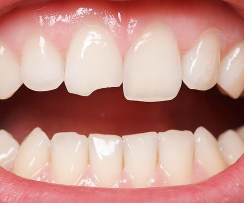 A closeup image of a space between teeth