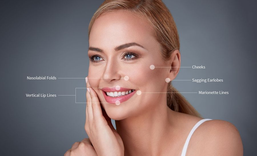 A smiling woman and labels that show areas that can be corrected with JUVÉDERM
