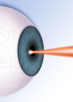 Image of laser being used on eye during LASIK