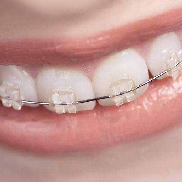 Close-up of a child's teeth with braces