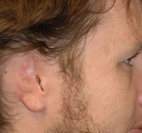 Close up profile view of young man with misshapen ear