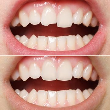 Before and after dental bonding pictures