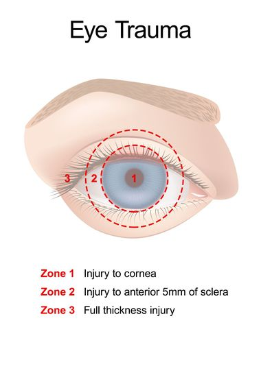 Illustration of the zones/areas of eye trauma.
