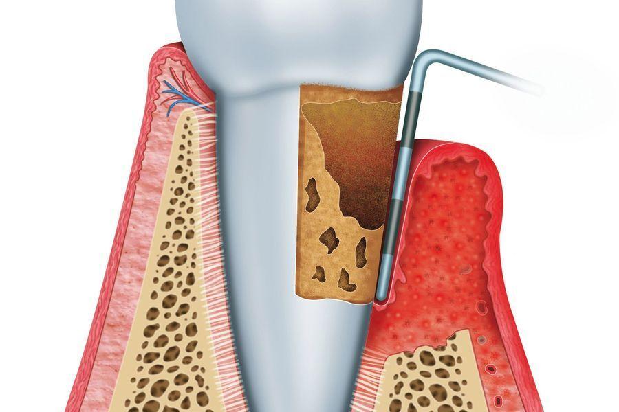 Illustration of pocket reduction surgery.