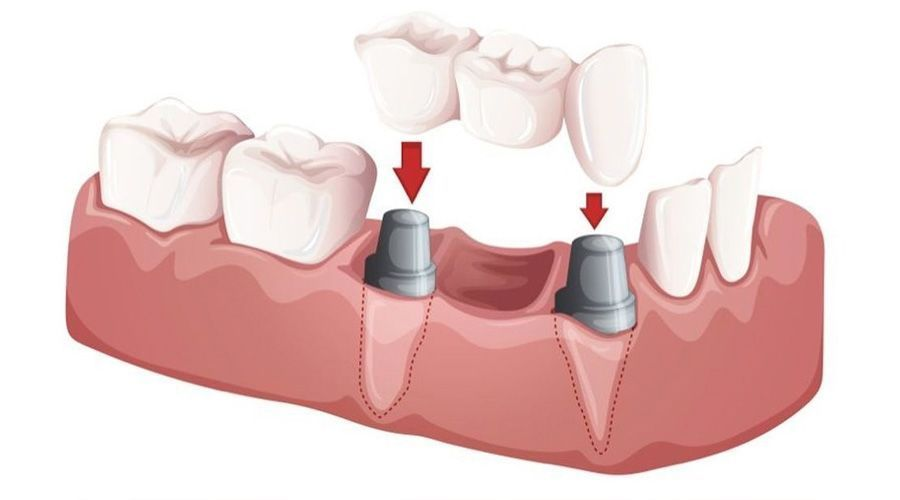 illustration of an implant-supported bridge
