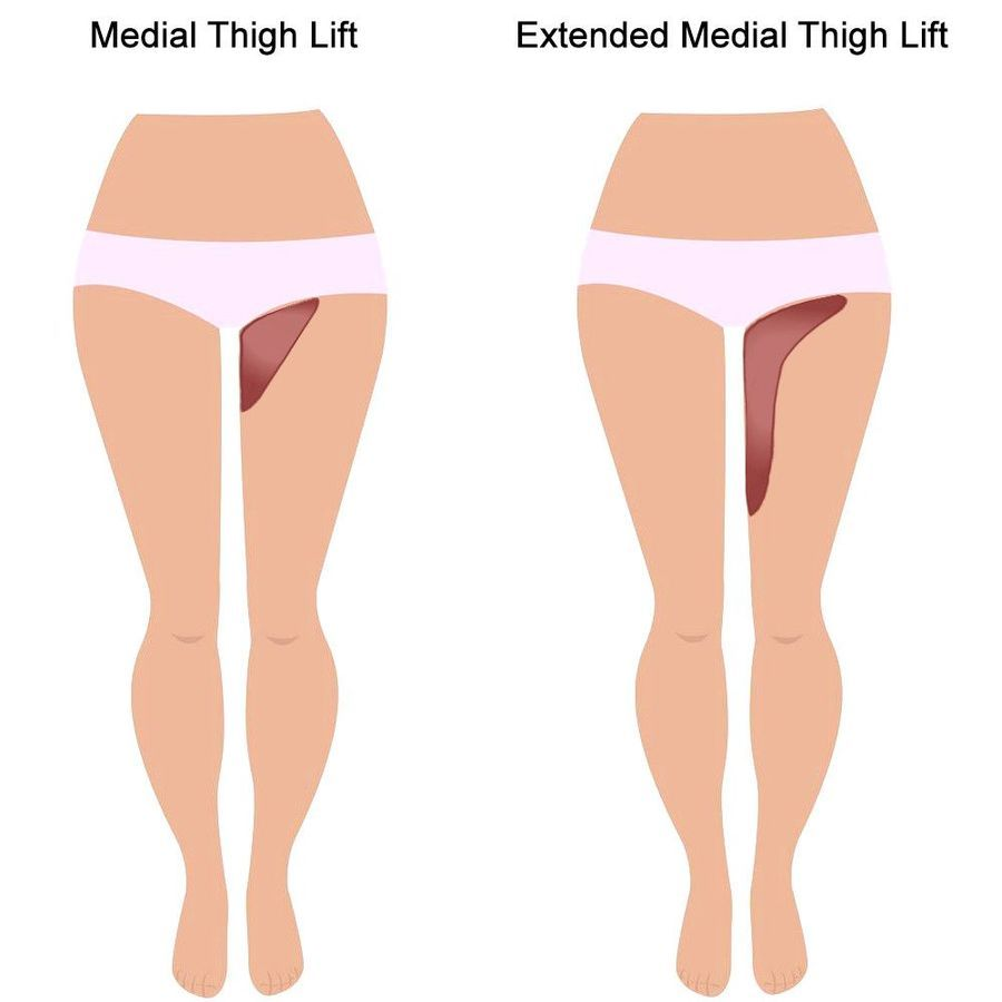 illustration of areas addressed by a thigh lift