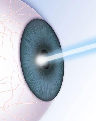 laser and cornea