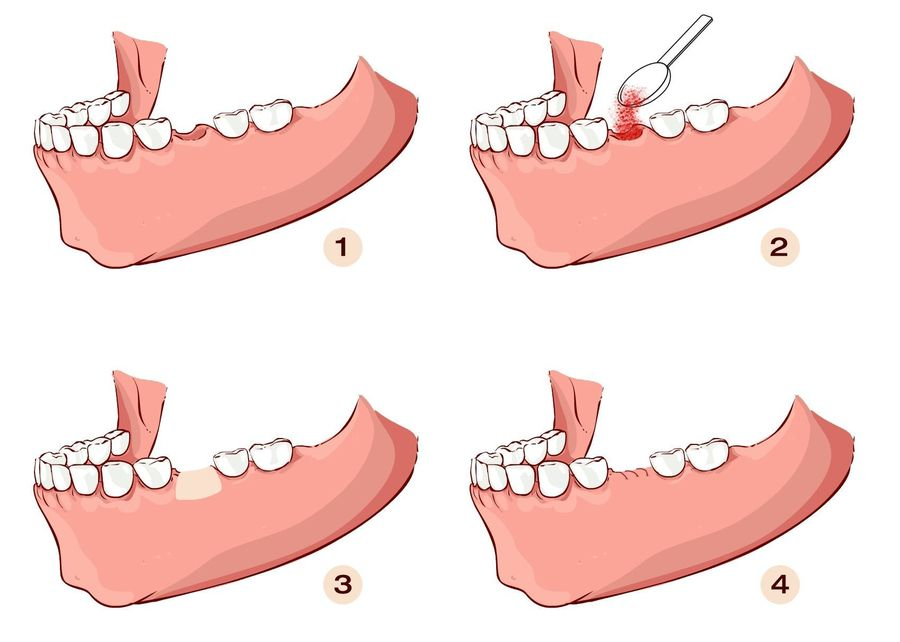 Diagram demonstrating the steps necessary to perform a ridge augmentation.